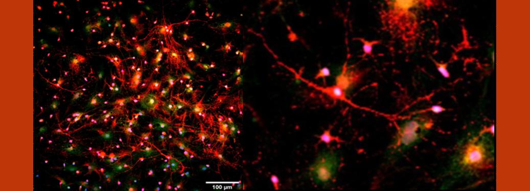 Neurons and their sugar coat